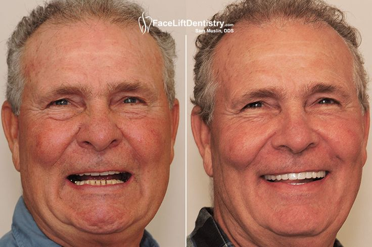 Dr. Sam Muslin was Awarded LA's Best Cosmetic Dentist for 2015.Now he is serving his clients by giving innovative non surgical treatments.For more info call us on :(310) 829-6796 or examine the mentioned link.   #OverbiteCorrection #withoutbraces