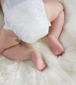 Como tratar assaduras | Macetes de Mãe