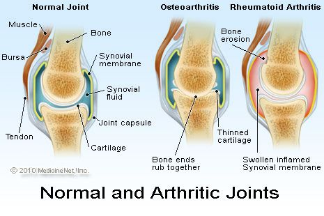 Anatomical structure of Arthritic joint