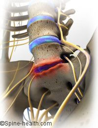 Degenerative Disc Disease- the pain associated with degenerative disc disease is thought to stem from two main factors: 1-Inflammation The proteins contained within the disc space can cause a lot of inflammation, and as a general rule inflammation will cause pain. 2-Abnormal micro-motion instability If the annulus - the outer rings of the intervertebral disc - degenerates and wears down, it is not as effective in resisting motion in the spine.