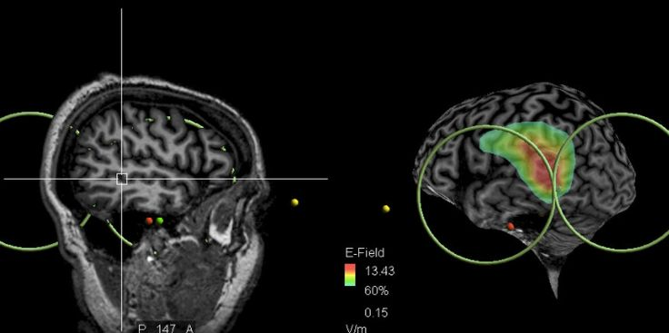 A new study has shown that for patients with schizophrenia stimulating a specific area of the brain with magnetic pulses can decrease their likelihood of hearing voices. 34.6% of patients treated with Transcranial Magnetic Stimulation (TMS) had more than 30% decrease in auditory hallucinations.