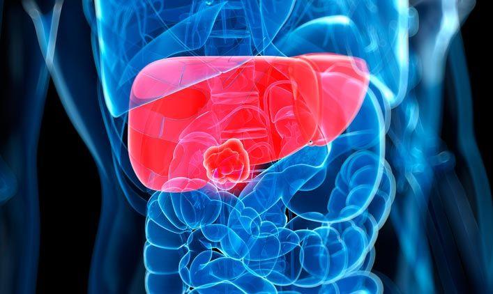 A limpeza do fígado e da vesícula e a eliminação dos cálculos biliares são um dos mais importantes e poderosos recursos para a melhora da saúde. A limpeza do fígado requer seis dias de preparação, ...