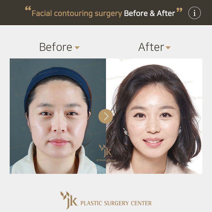 Yes, that's extreme facial surgery fuck