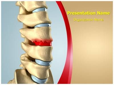 Disc Osteophyte Formation Powerpoint Template is one of the best PowerPoint templates by EditableTemplates.com. #EditableTemplates #PowerPoint #Human Bhuman Spine #Disease #Anatomical #Arthritis #Orthopedic #Treatment #Vertebra #Posture #Physical Pressure #Spinal Cord #Surgery #Cord #Canal #Lamina #Prolapse #Column #Chiropractic #Body #Nerve #Disc #Health Hernia #Symptom #Pressure #Paralyze #Degeneration #Intervertebral #Sequestration #Medicine