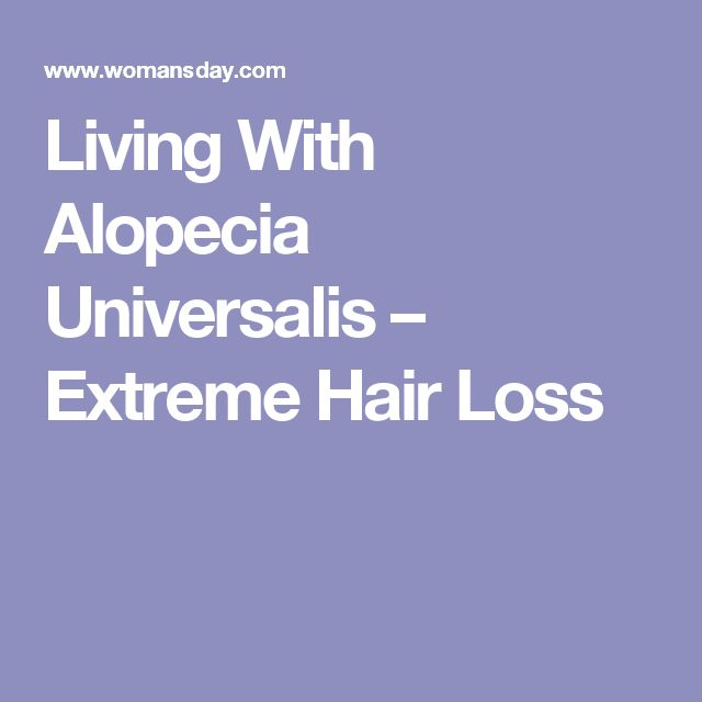 Living With Alopecia Universalis – Extreme Hair Loss