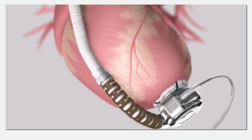 The Bridge To Heart Transplantation:  Left ventricular assist device (LVAD)