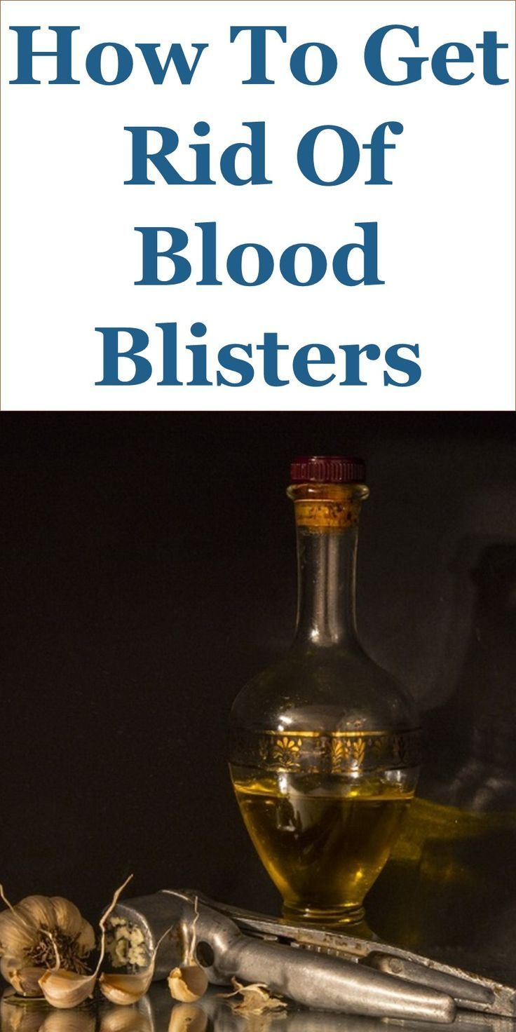 How To Get Rid Of Blood Blisters – 20 Home Remedies: This Guide Shares Insights On The Following;  Blood Blister On Back, Blood Blister Causes, Pictures Of Blood Blisters, Blood Blister On Finger, Blood Blister Or Melanoma, Blood Blister On Leg, Blood Blister Under Skin, How Long Do Blood Blisters Last On Your Foot, Etc.