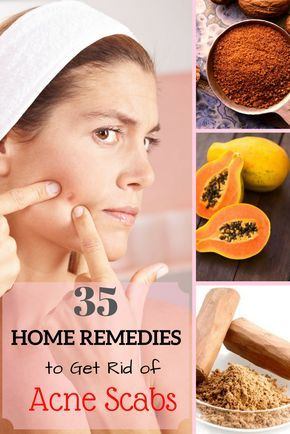 35 Efficacious Home Remedies to Get Rid of Acne Scabs.