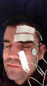 Image result for electric stimulation for bell's palsy