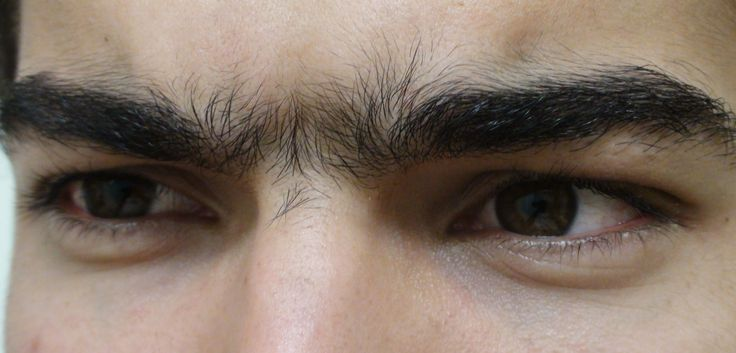 How to get rid of unibrow hair growth for men eyebrow