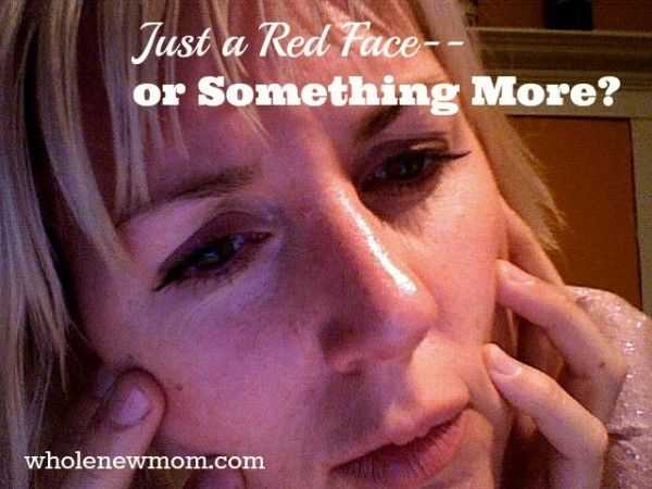 You've got a red face. Red blotches. Is it just a temporary thing? Or something More. Rosacea is a real health condition. Find out why I had a red face--and what I did to get rid of it.