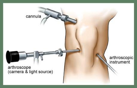 Best arthroscopic surgeon in Mumbai. specialist in knee replacement, knee arthroscopy, shoulder arthroscopy and hip replacement