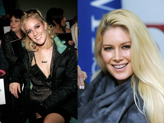 Heidi Montag got 10 plastic surgeries done in one day! She got lipo, breast implants, butt augmentation, a nose job, chin reduction, surgery on her ears to pin them down, Botox and fillers. Mind you, she was 24 when she got all these procedures.