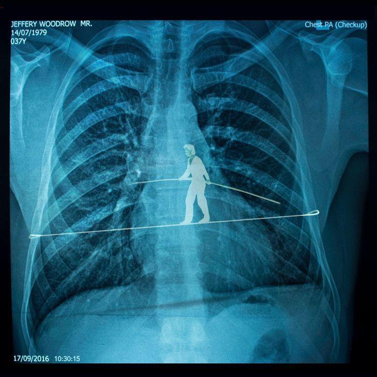 Stomach ache.   Chest X-ray of Jeffery Woodrow