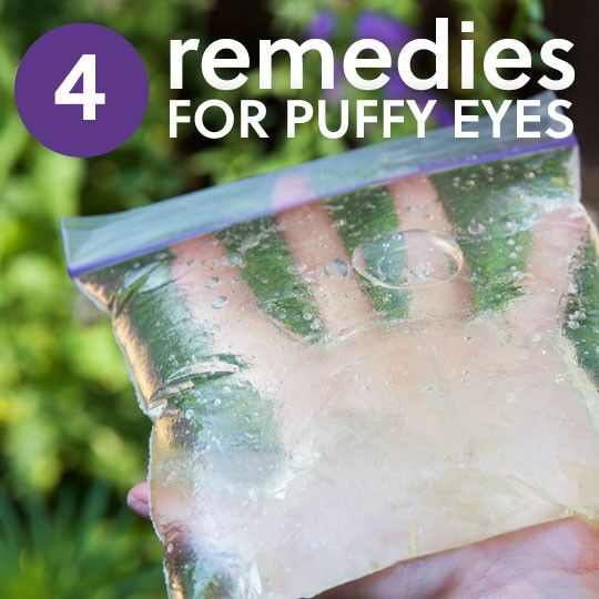 Puffy eyes (or periorbital swelling, if you want to sound really fancy about it) refers to swelling of the tissues around the eyes-above, below, or all around. The actual puffiness itself is almost always caused periorbital edema, or fluid build-up around the eye, although aging, weight, and...