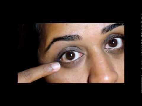 10 Tips to Remove Dark Circles Under Eyes Permanently and Easily