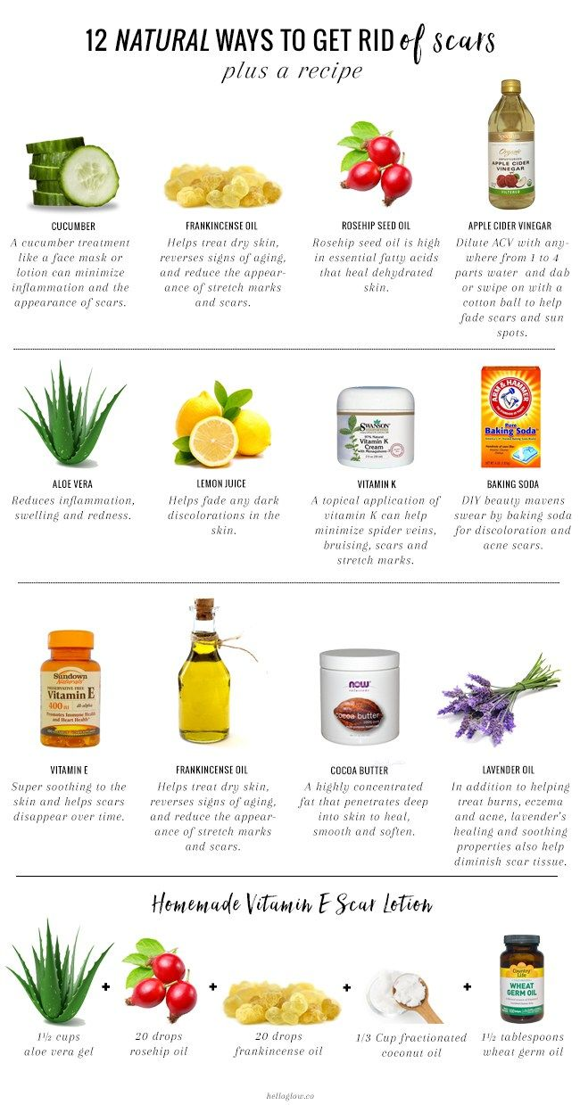 12 Natural Ways to Get Rid of Scars