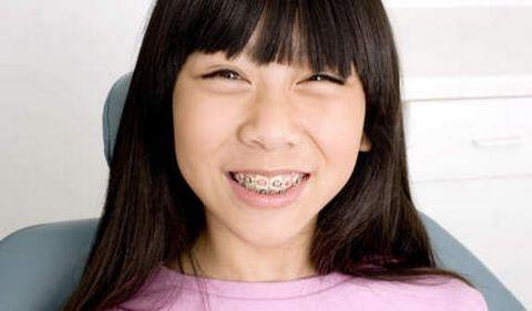 Dit jaar is om mijn tanden eindelijk recht te zetten!