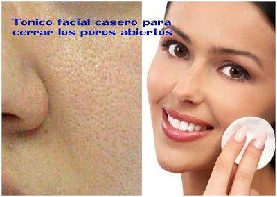 Cómo hacer tónico facial casero para cerrar poros abiertos ~ cositasconmesh https://www.pinterest.com/mercedesmeshler/tips-de-belleza/
