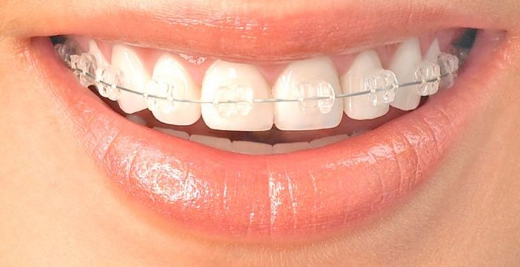 Orthodontist South Jordan UT