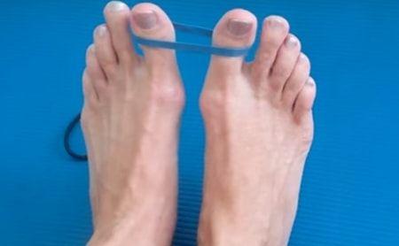 Ayak üstünde kemik çıkması