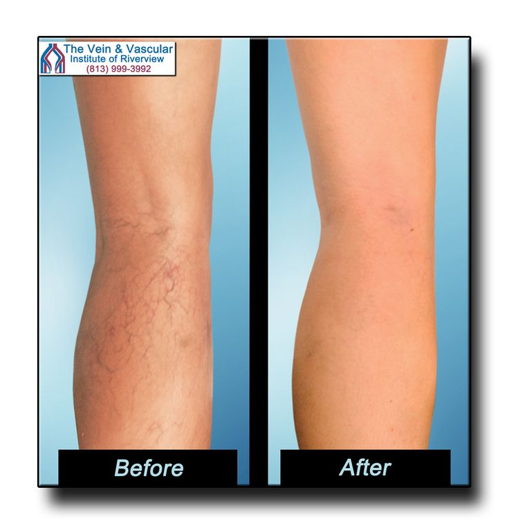 Sclerotherapy spider vein treatment Riverview FL, spider vein specialist Holly Kerr makes a fantastic leg transformation for this patient - leaving her leg looking great, free of spider veins and scars! If you need spider veins removed, Holly is the Riverview vein specialist to go to. Call (813) 999-3992.  #SclerotherapyRiverviewFL #SpiderVeinTreatmentRiverviewFL #RiverviewSpiderVeinSpecialist  https://www.veinandvascularinstituteofriverview.com/service/spider-veins-treatment-riverview-fl/