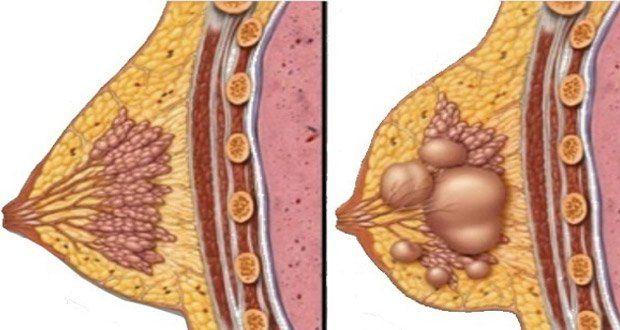 comment-prevenir-et-traiter-les-kystes-mammaires-naturellement