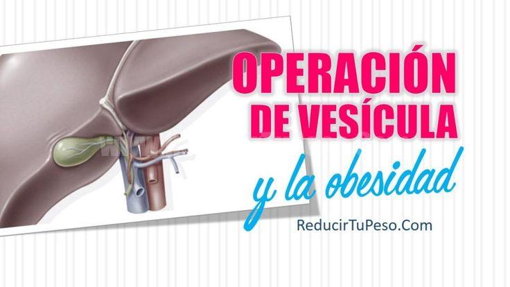 Operación de vesícula y la obesidad
