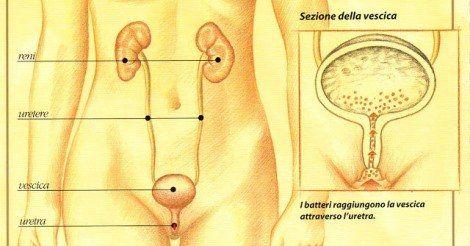 Cistite e infezioni vaginali a ripetizione. La soluzione naturale