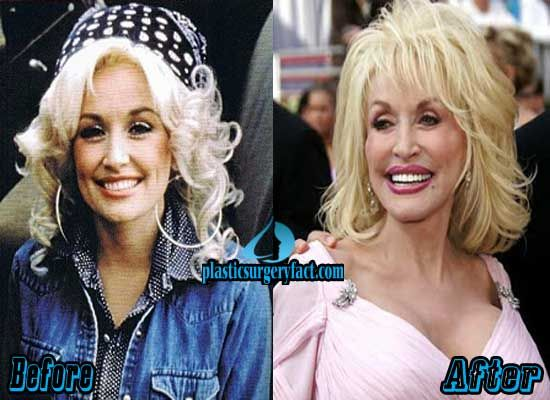 Dolly Parton Plastic Surgery Gone Wrong | http://plasticsurgeryfact.com/top-10-pictures-of-celebrity-plastic-surgery-gone-wrong/