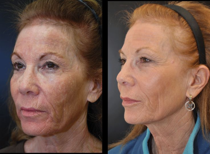 Best way to reduce wrinkles fast