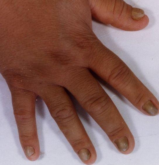 Familial yellow nail syndrome [eScholarship]