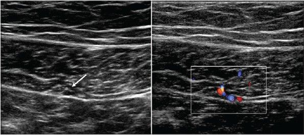 Anatomy - IEV - Transverse USG image over the right rectus abdominis just below the umbilicus showing the inferior epigastric vessels (arrow) within the substance of the posterior muscle. Color Doppler may be used to locate the vessels if not immediately apparent