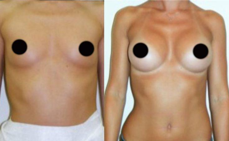 schoonheid, borstvergroting, gewichtsverlies, spataderen behandeling, de algehele gezondheid
