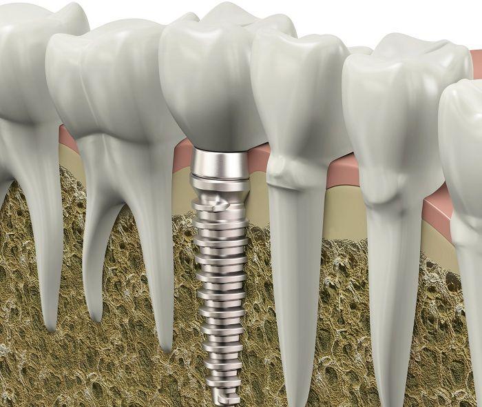 Японские ученые сделали сенсационное открытие: каждый утраченный зуб снижает интеллект человека и не только. Люди, которые имеют неполные зубные ряды замечают за собой странные особенности: во время