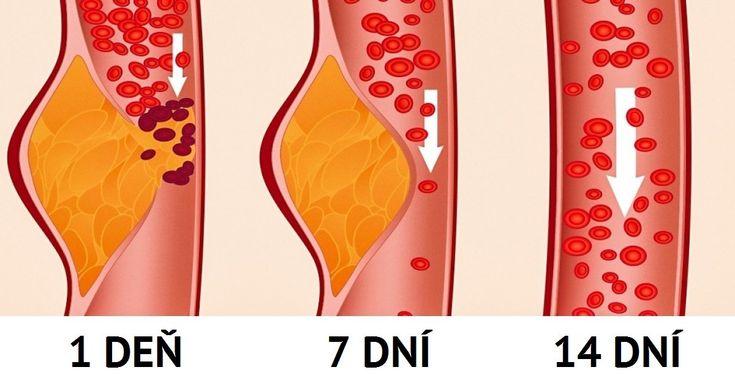 Poznajú ju po celom svete alekári aj odborníci ju označujú za najzdravšiu azároveň najúčinnejšiu diétu, aká tu kedy bola. Nejde pritom ožiadnu novinku. DASH je diéta založená na prístupe zastavenie hypertenzie avyvinutá bola už dávno špeciálne pre pacientov svysokým krvným tlakom. Dnes je dostupná pre všetkých aprevláda vnej zdravý rozum. Možno aj preto účinkuje nielen …