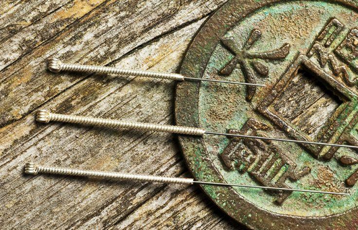 Problemas de saúde? Conte com a Acupuntura e a medicina chinesa. http://www.eusemfronteiras.com.br/medicina-tradicional-chinesa-acupuntura/