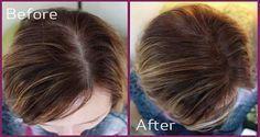 4 moyens naturels pour faire repousser les cheveux en 10 jours