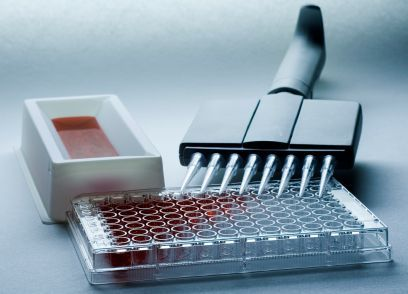 BioAssay Systems offers assay kits that are simple and convenient to use, which are superior in performance and require little to no time for assay optimization. https://bioassaysys.com/