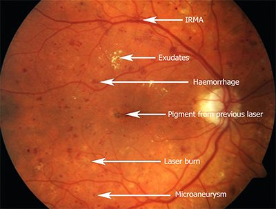 Fundus+Eye+Examination | Here is the same patient examined with a fluorescein angiogram:-