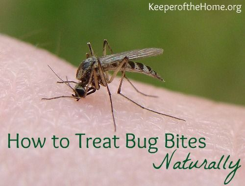 How to Treat Bug Bites Naturally