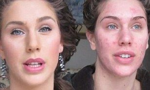 Acne-ridden Cassandra Bankson hoped to help one person by posting video of spot-concealing make-up tips is watched by MILLIONS | Daily Mail Online