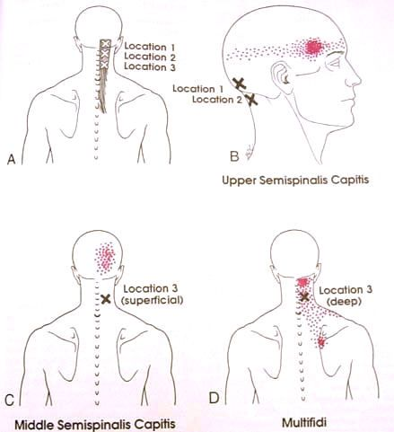 semispinaliscap  u0026 multifidi trigger point diagram