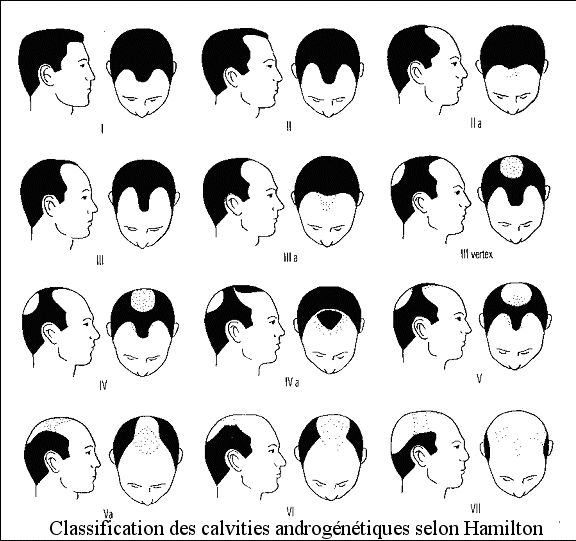Voici la classification d'Hamilton qui situe tous les types de calvitie. #HairImplant #LooseHair #GetYourHairBack