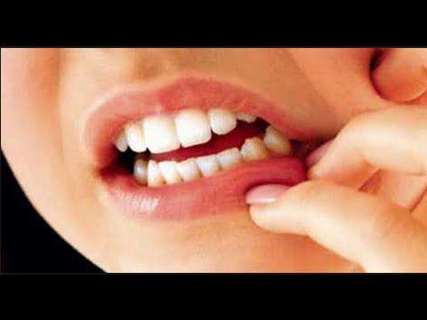 Diş eti çekilmesi için kür - İbrahim Saraçoğlu