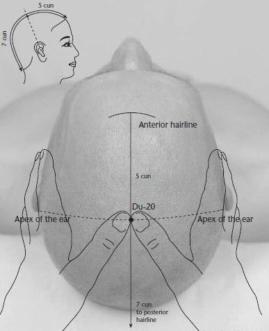Hundred Convergences is a potent #acupressure point for earache#treatment that is widely used in traditional Chinese medicine.