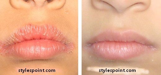 Vitamin D Chapped Lips