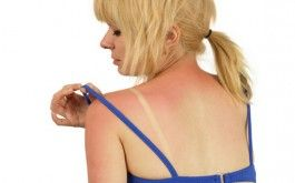Home Remedies for Burns   8 Natural Treatments     -     http://naturalsociety.com/home-remedies-for-burns-8-natural-treatments/