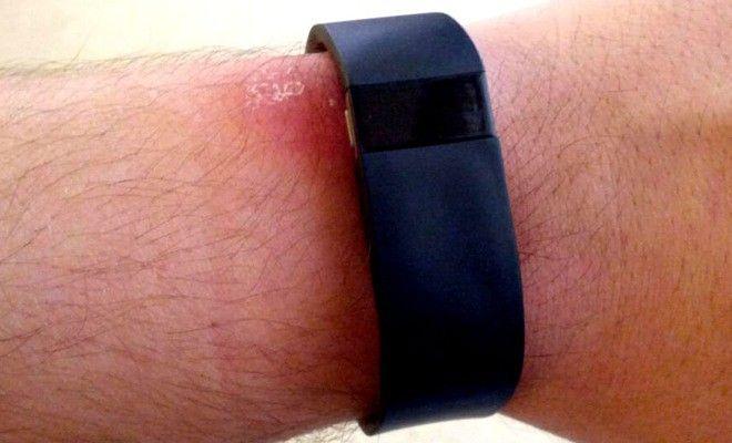 Ανάκληση του Fitbit Force λόγω αυξημένου κινδύνου αλλεργιών » Wearable.gr