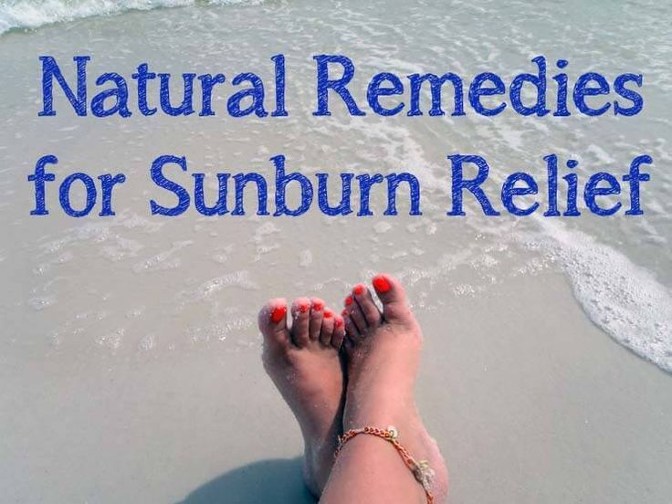 The best option is to avoid sunburn but if it happens, try natural remedies like apple cider vinegar, peppermint, plantain, lavender, aloe and coconut oil.